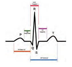 OTR-ECG-Fig1