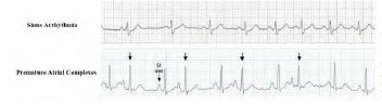 OTR-ECG-Fig3
