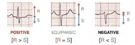 OTR-ECG-Fig4
