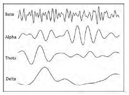 OTR-brainwave-Sept2019-LOGIQ3