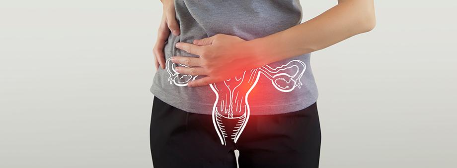 RGAX Life Underwriting Hub - Polycystic Ovarian Syndrome